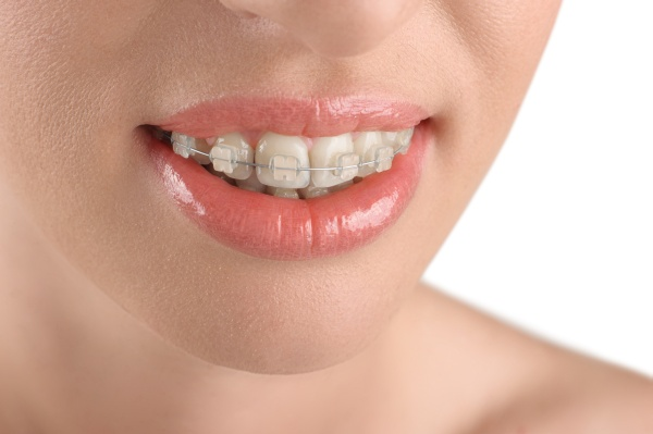 Consider Clear Braces For Straighter Teeth